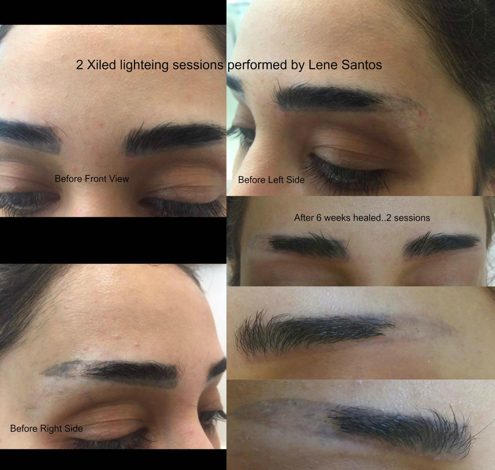 Healed results after 2 removal sessions