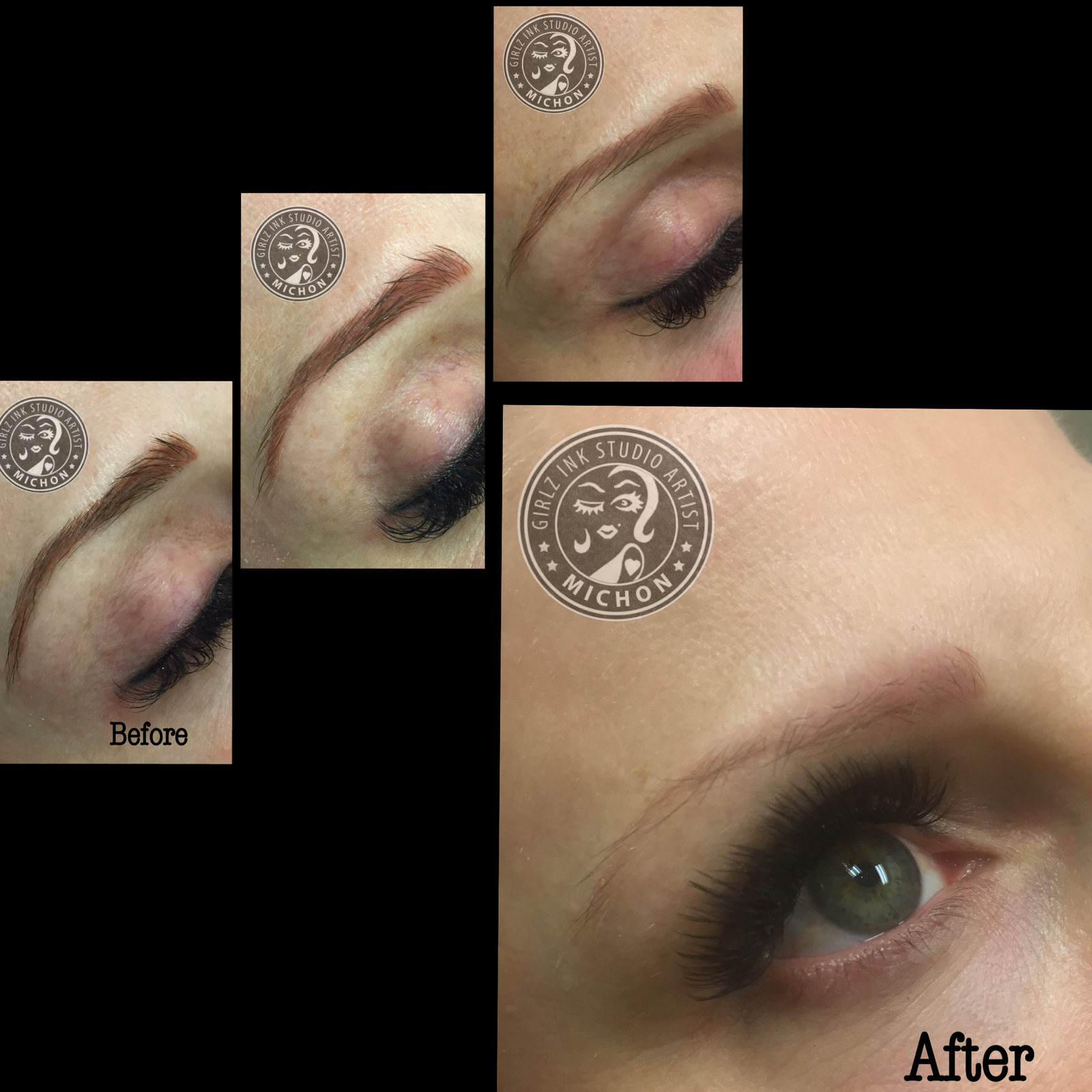 An amazing removal of red/orange permanent makeup eyebrows after 3 full sessions. Now she can have them re-done in a beautiful natural color and shape.