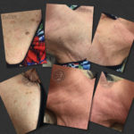 Before and after pictures of removal of multiple skin tags all in one session. This is 4 weeks healed.